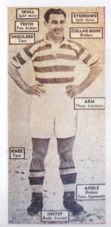 Celtic's Iron Man - injuries couldn't stop him!
